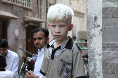 A Short History of Albinism