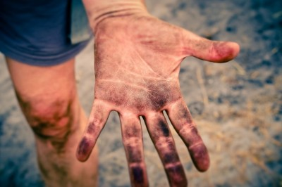 Tips On How To Deal With Greasy Hands