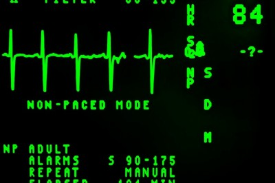 The Meaning of Abnormal EKG Results