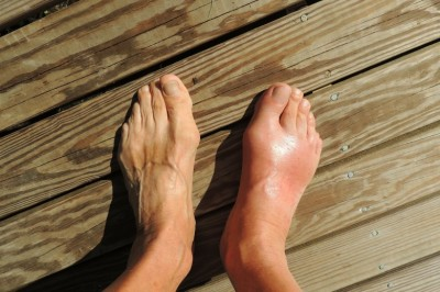 What Causes Swollen Ankles? - A Few Common Causes of Swelling Feet Or Ankle