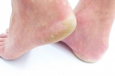 Skin Fungus Infections (Symptoms and Treatments)