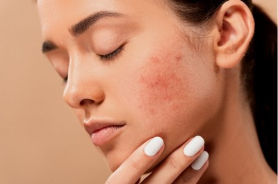 Is Glycolic Acid Good For Acne?